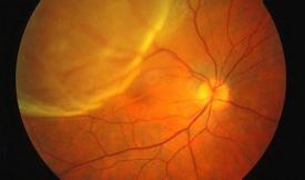imagen retina