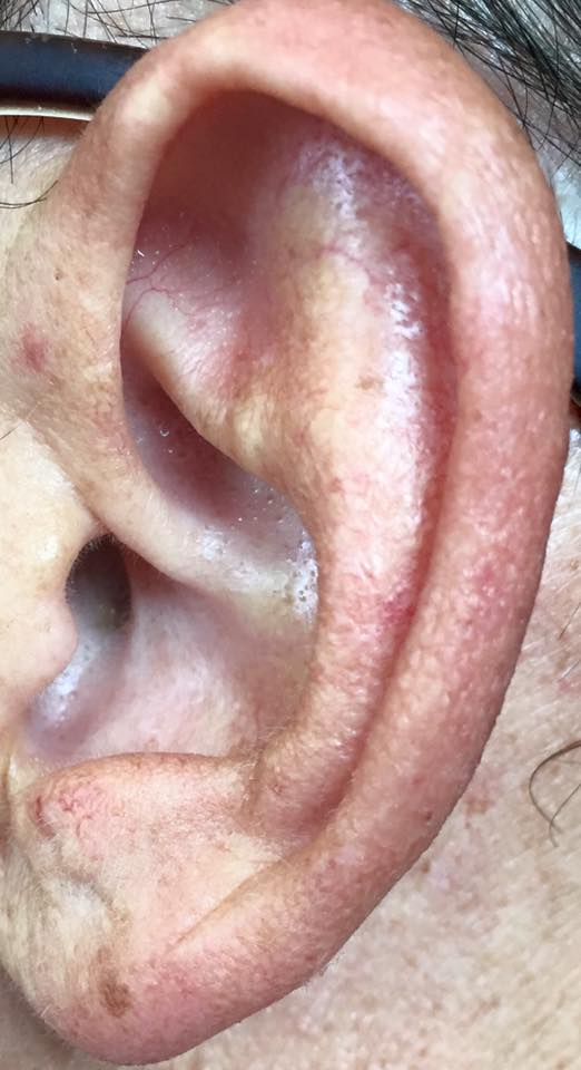 imagen oreja