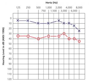 gráfica de audiometría
