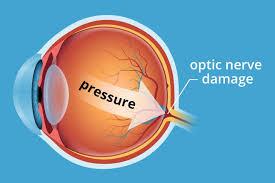 dibujo presión nervio óptico