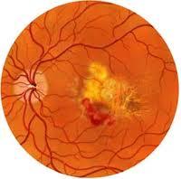 imagen de retina con DMAE