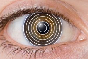 discos de plácido en cornea