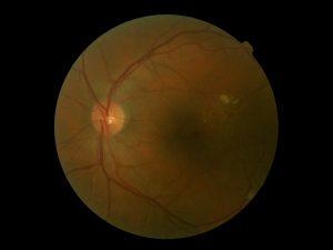 fondo de ojo exudados