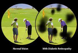 DIABETES Y VISION