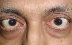 paralisis oculomotora
