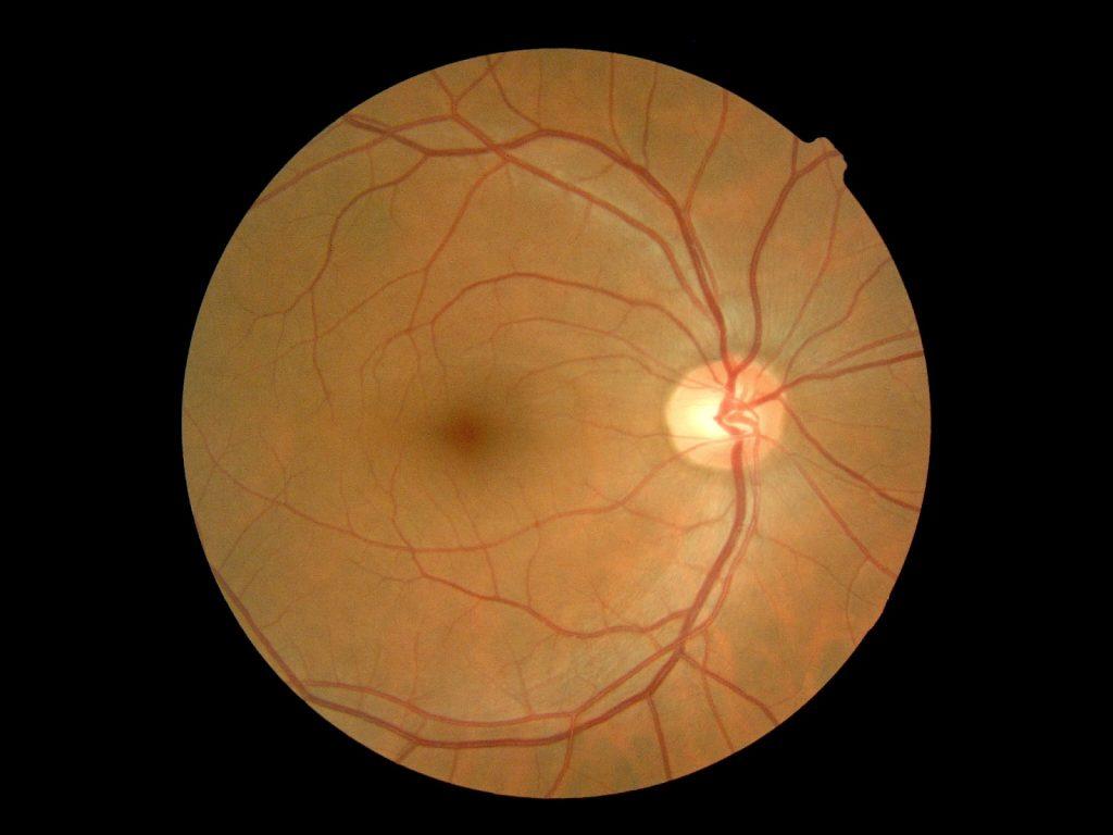 imagen de glaucoma