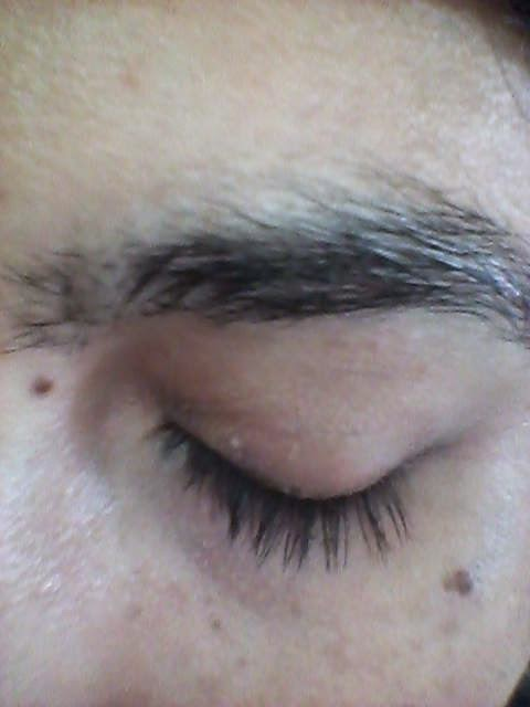 imagen blefaritis