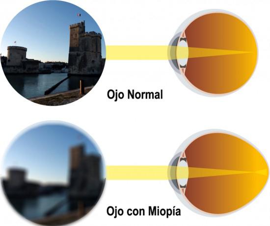 MIOPIA MAGNA ¿Qué es? ¿Cómo se maneja? -Blog Visual Center Madhu